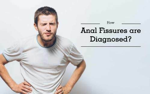 How to diagnose anal fissure